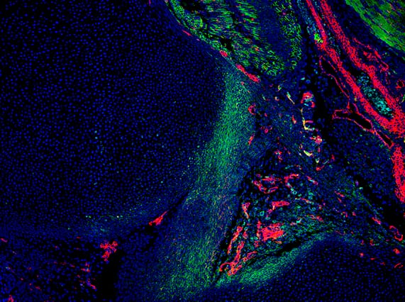 Developing knee joint (Image courtesy of the Evseenko Lab)