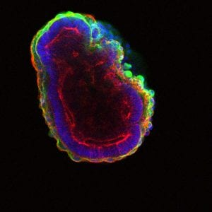 Stem cells self-organize to form a hollow ball of cells. (Image by In Kyoung Mah and Francesca Mariani) channels=3 mode=color unit=um spacing=1.0E-13 loop=false