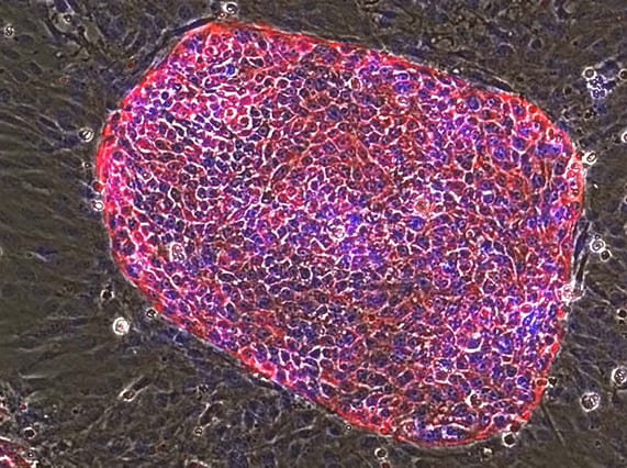 Liver stem cells derived from rat embryonic liver (Image courtesy of the Ying Lab)