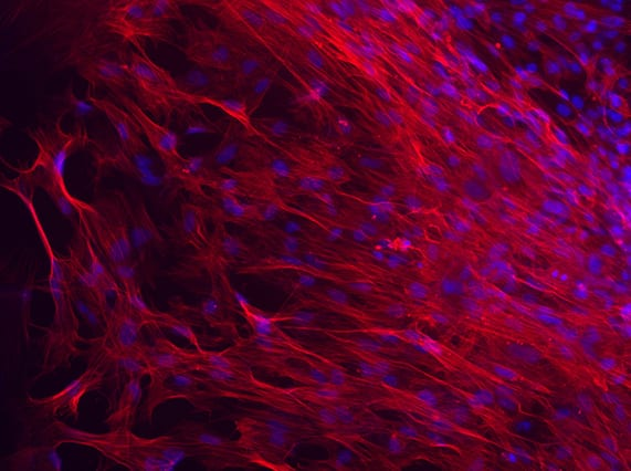 Smooth muscle cells derived from human embryonic stem cells (Image courtesy of the Ying Lab)