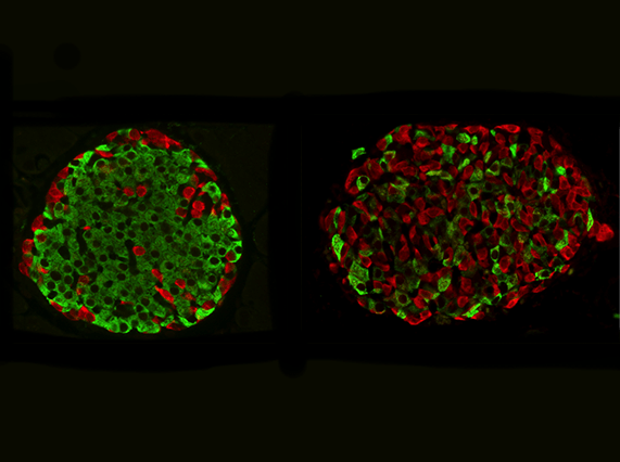 Normal mouse islet (left); mouse islet where insulin cells have been reprogrammed into glucagon cells (right) (Image courtesy of the Georgia Lab)