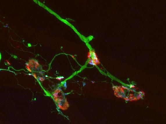 Human motor neuron