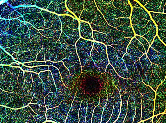 Phase-variance OCT: Non-invasive 3D imaging of vasculature in the retina and choroid of the eye (Image courtesy of Jeff Fingler)