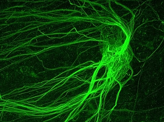 Many axons forming a glomerulus in a mouse olfactory bulb (Image courtesy of David Koos)