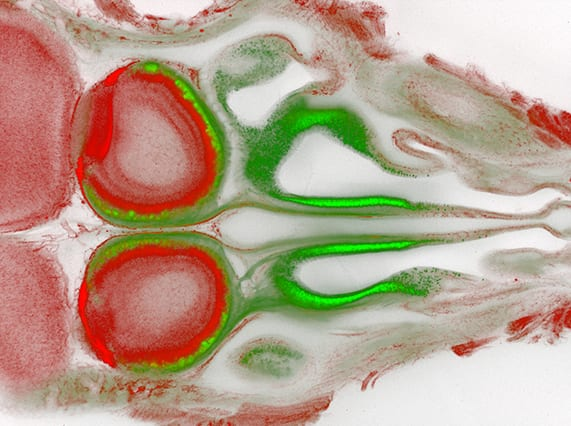 Olfactory Sensory Neurons: Transgenic mouse section revealing the nasal cavity and olfactory bulbs (Image courtesy of David Koos)