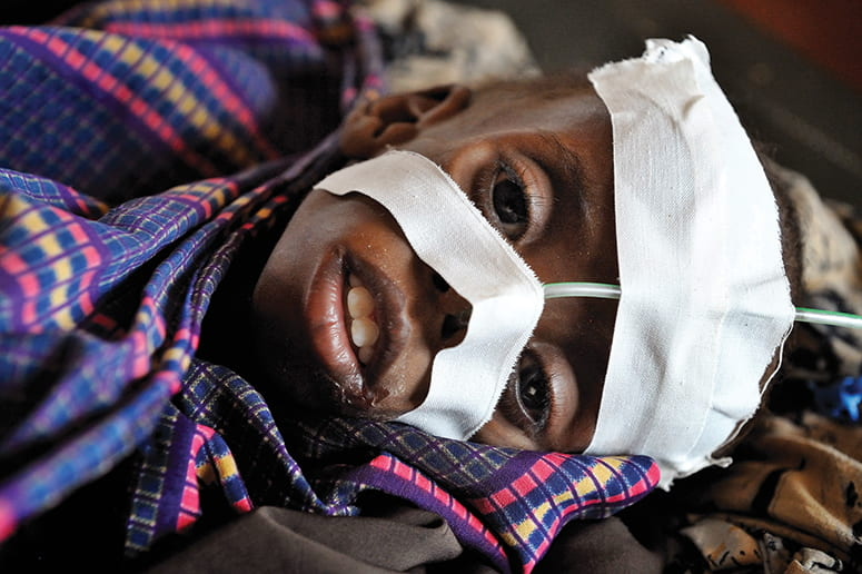 Photo of an African child, lying down, with a feeding tube administering nutrition through his nose