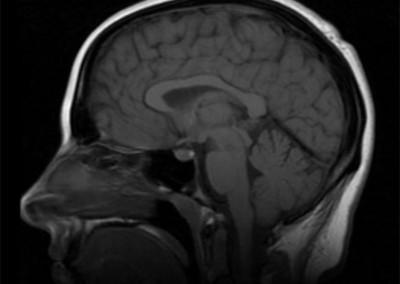 Mid-sagittal MRI