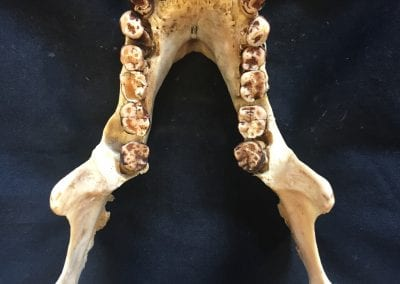 A chimpanzee showing advanced osteoarthritis of the jaw joint along with dental wear and abscessing (between the left second and third molars)