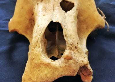 This male baboon was bitten on the face and appears to have healed up (though minus their front teeth). The biter even left behind a bit of their canine in this baboon's face!