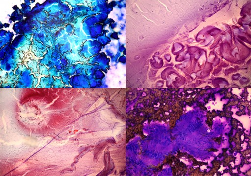 Photos featured in 'Art in the Shadows,' a new exhibit set to be on display at the Urban Arts Space beginning Sept. 6 through Oct. 4. The images — shot by Amy Joehline-Price, a resident pathologist at the Wexner Medical Center — zoom in on lab samples only seen clearly through a microscope, including biopsies and surgical tissue. The exhibit is to be the first for the gallery, which is owned by OSU and located in downtown Columbus, to mix art with medicine.  Credit: Courtesy of Amy Joehline-Price