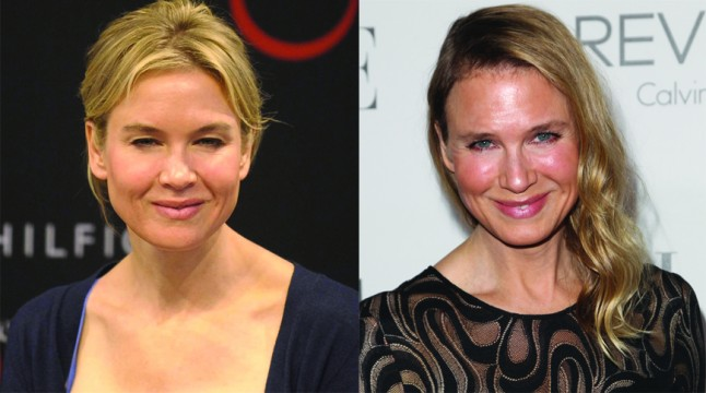 Opinion: Renee Zellweger's about-face needs explanation